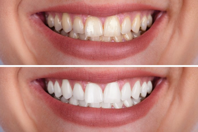 a woman's teeth before and after a teeth whitening treatment
