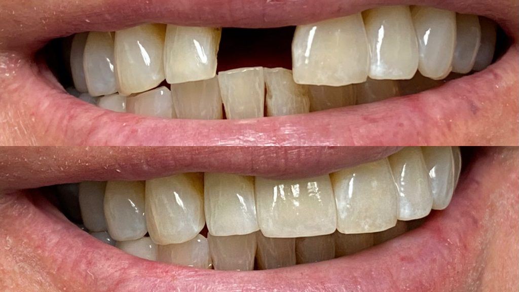 a close up of a real-life missing tooth before and after fixed by Dr. Dustin Ebner of Ebner Family Dentistry