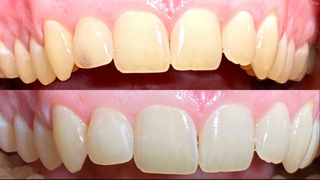 a close up of a real-life tooth whitening before and after performed by Dr. Dustin Ebner of Ebner Family Dentistry