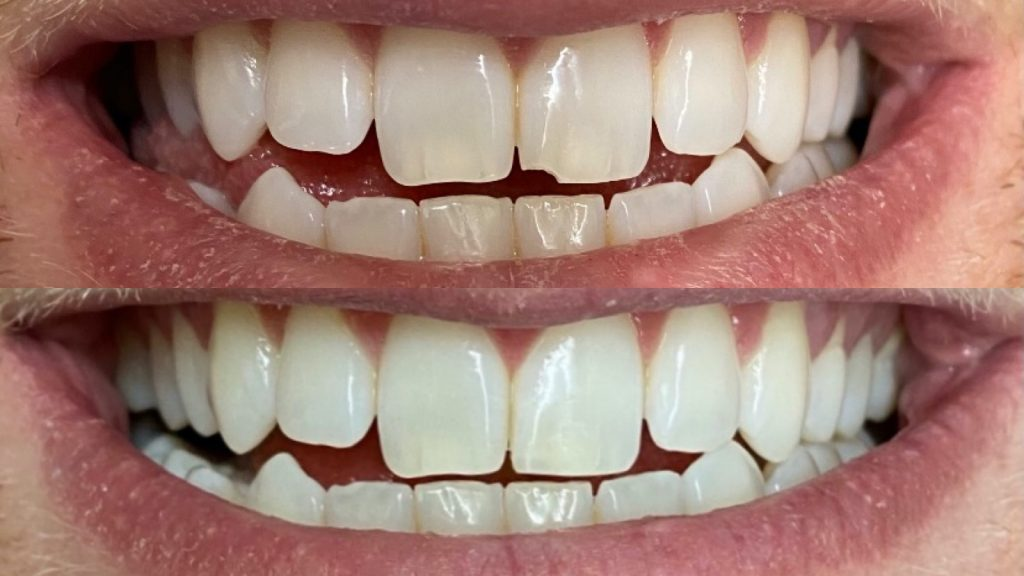 a close up of a real-life chipped tooth before and after fixed by Dr. Dustin Ebner of Ebner Family Dentistry