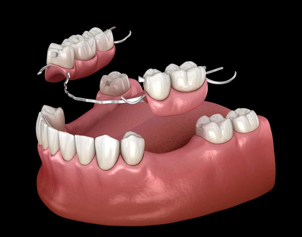 an illustration of a partial denture to replace missing teeth