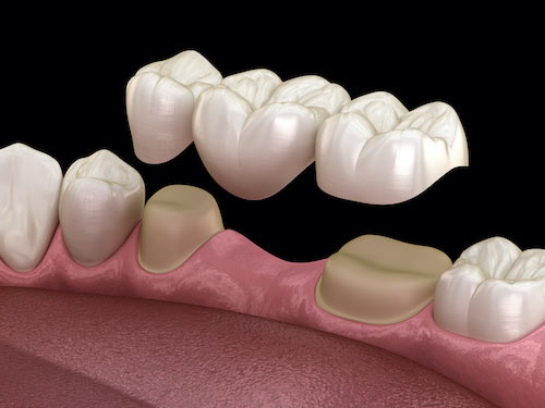 an illustration of a parial denture to replace a missing tooth