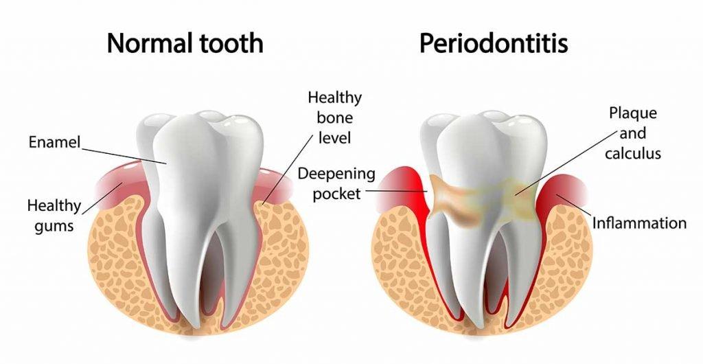 an illustration of gum disease