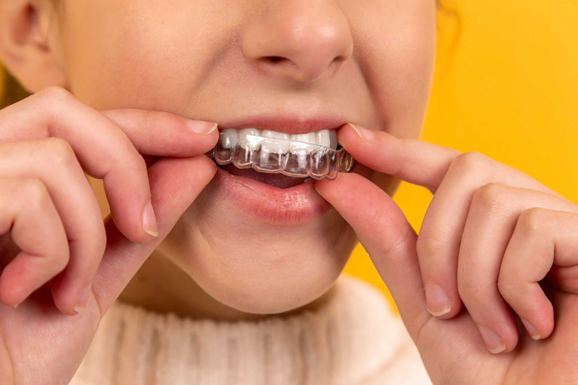 a woman inserts invisalign tooth aligners