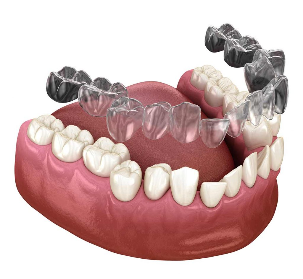 an illustration of invisalign tooth aligners