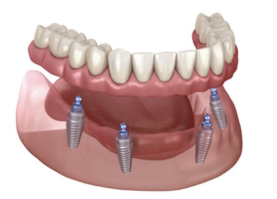 an illustration of all on four denture implants